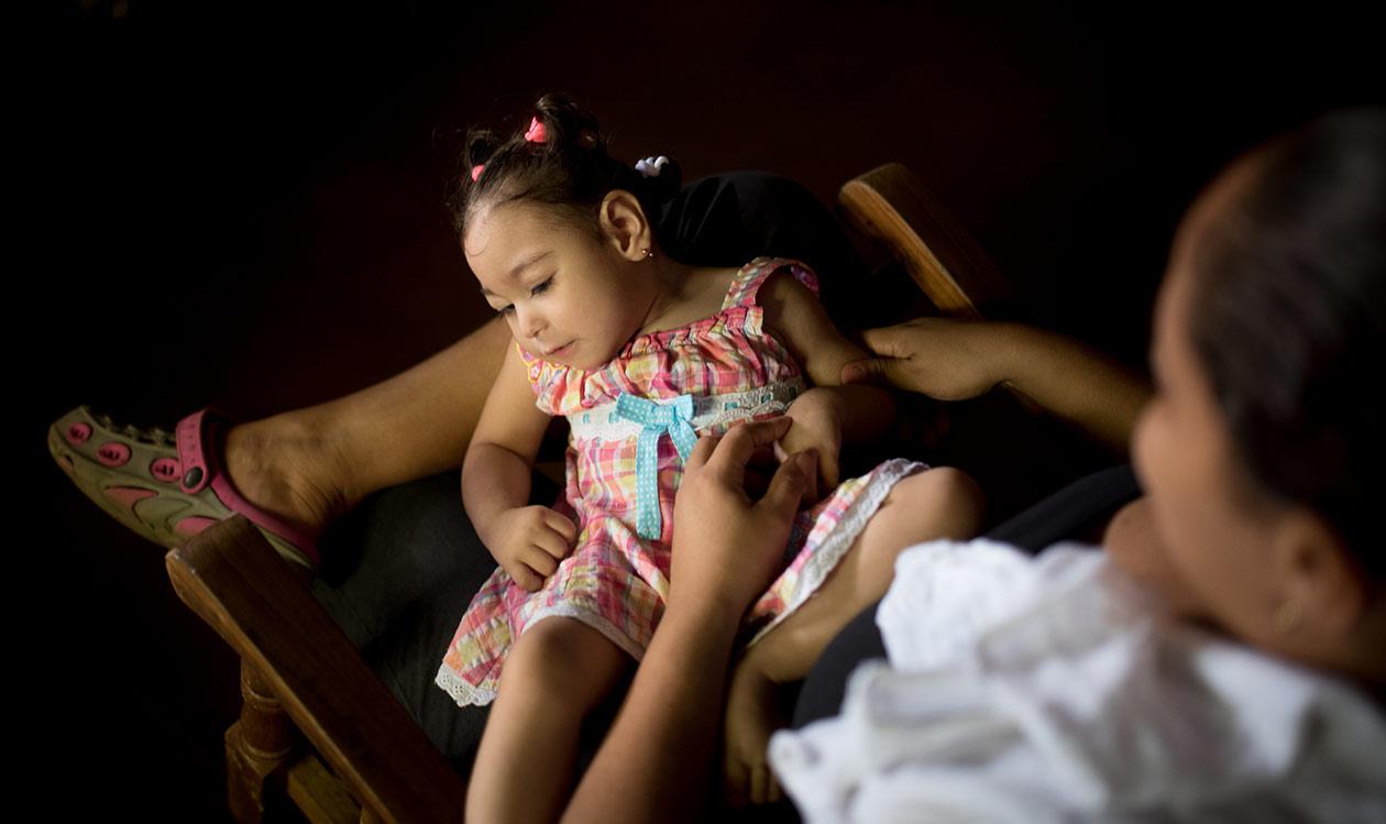 El primer síntoma de zika que Maryuri padeció fue rash, afirma. Carlos Herrera | Niú.