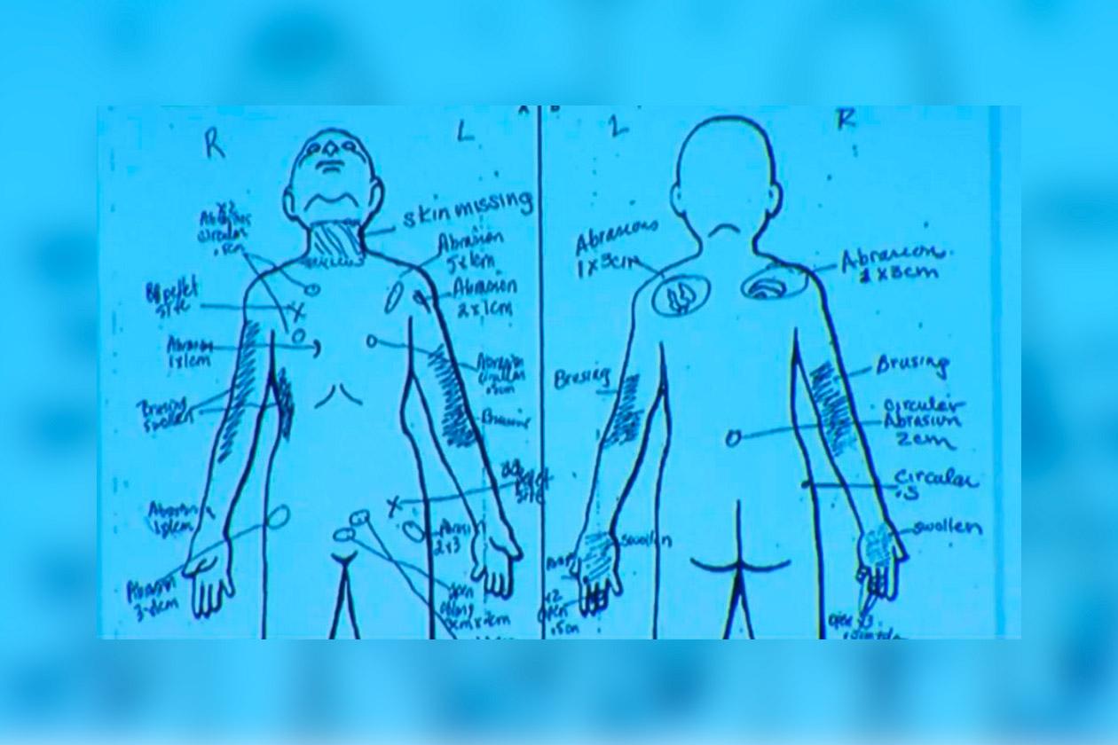 Dibujo creado tras la autopsia del niño, Gabriel Fernández. En él se muestran los lugares donde se le encontró señales de violencia.